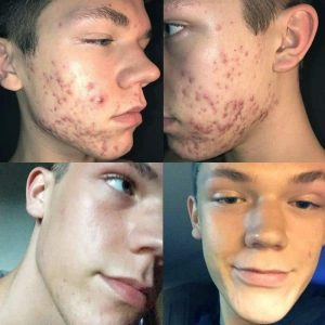 Curology Reviews Before and After