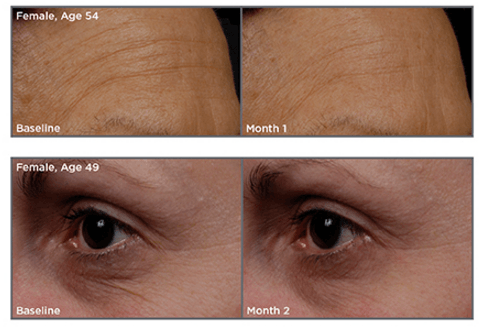 tns advanced serum before and after