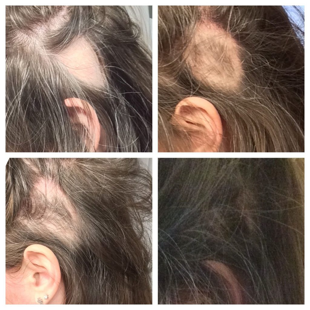 Monat Intense Repair Treatment Review Worth The Hype Cheaperks