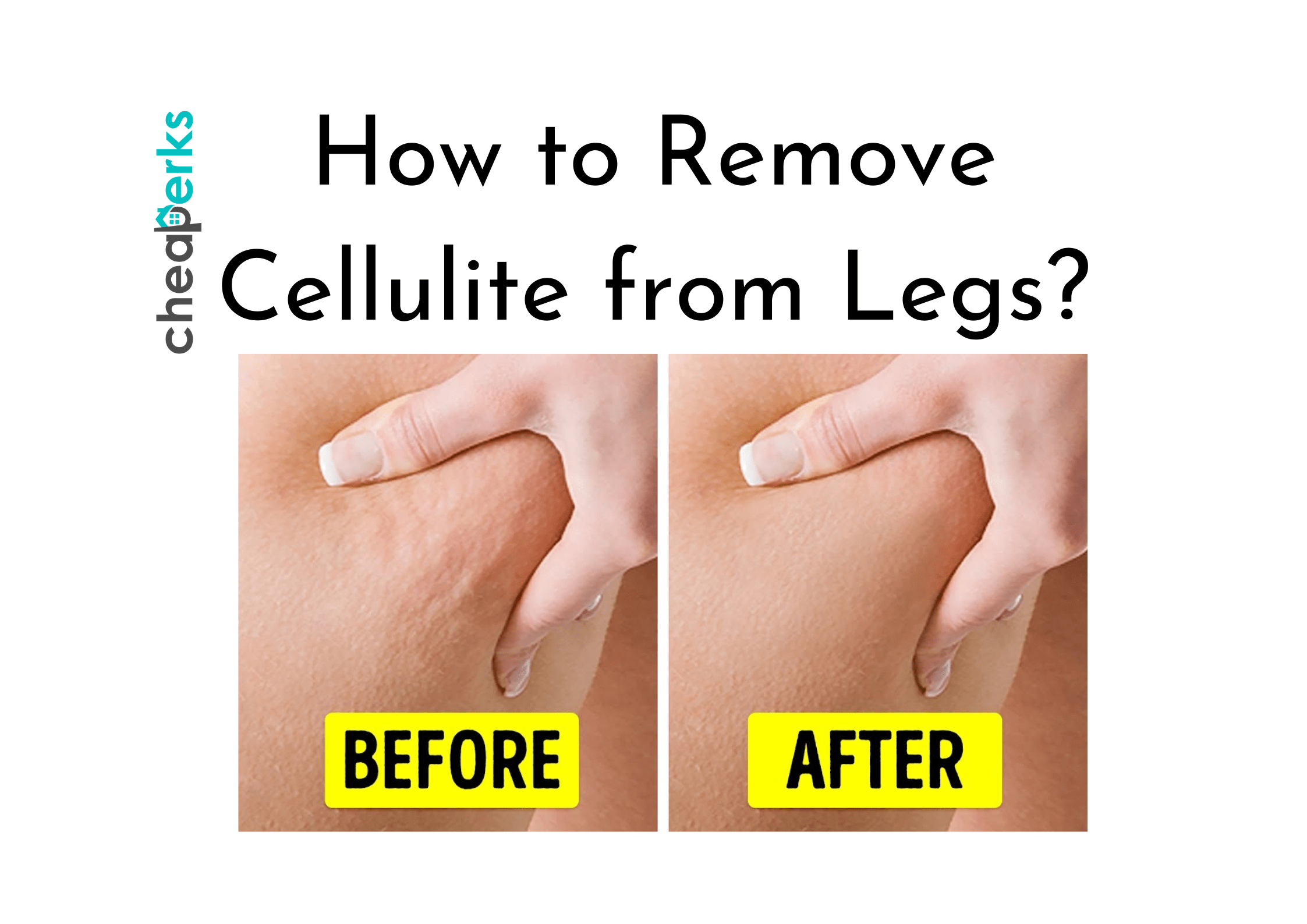 How to Remove Cellulite from Legs?