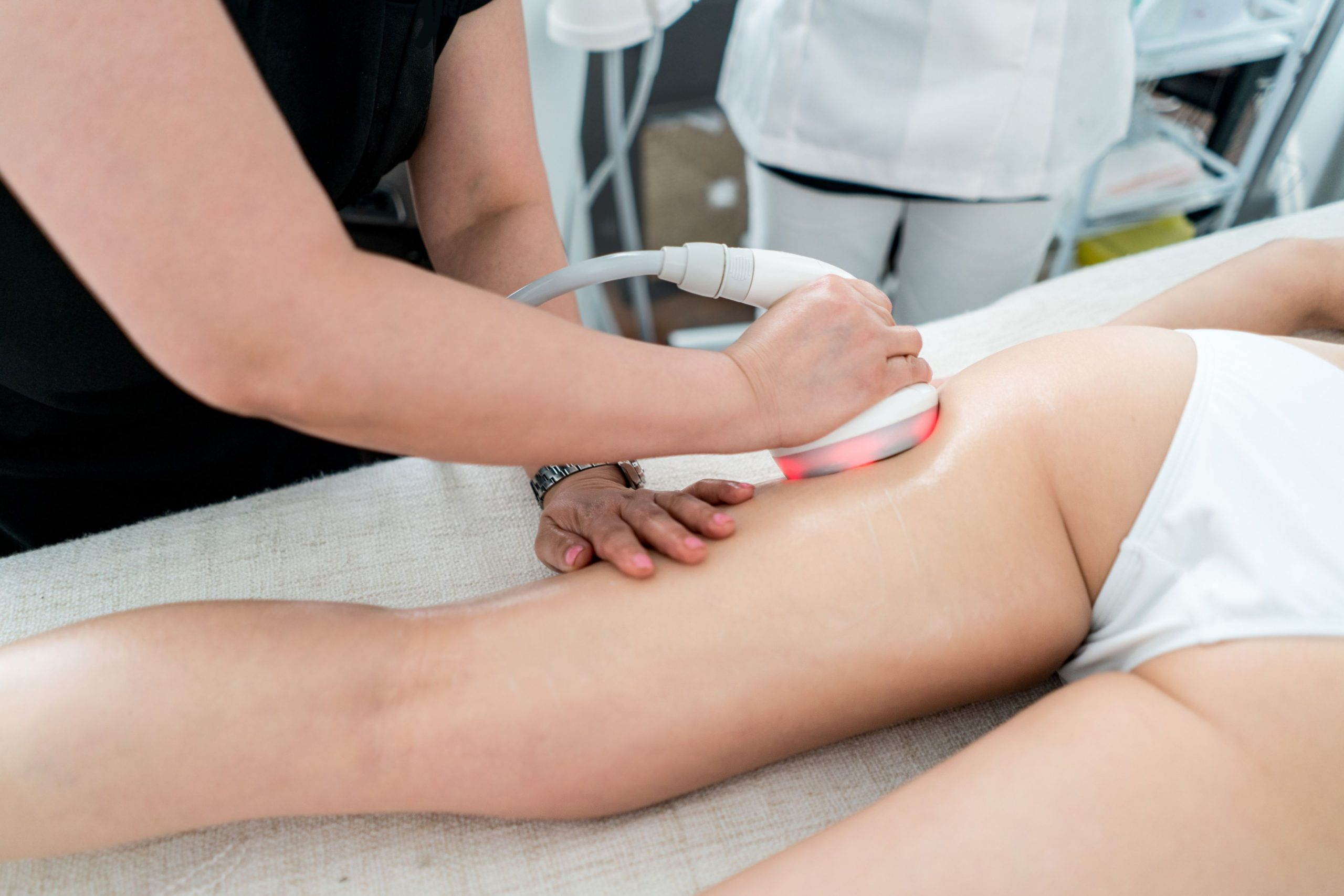 laser treatment to remove cellulite