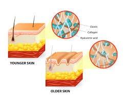 Radiofrequency Skin Tightening work