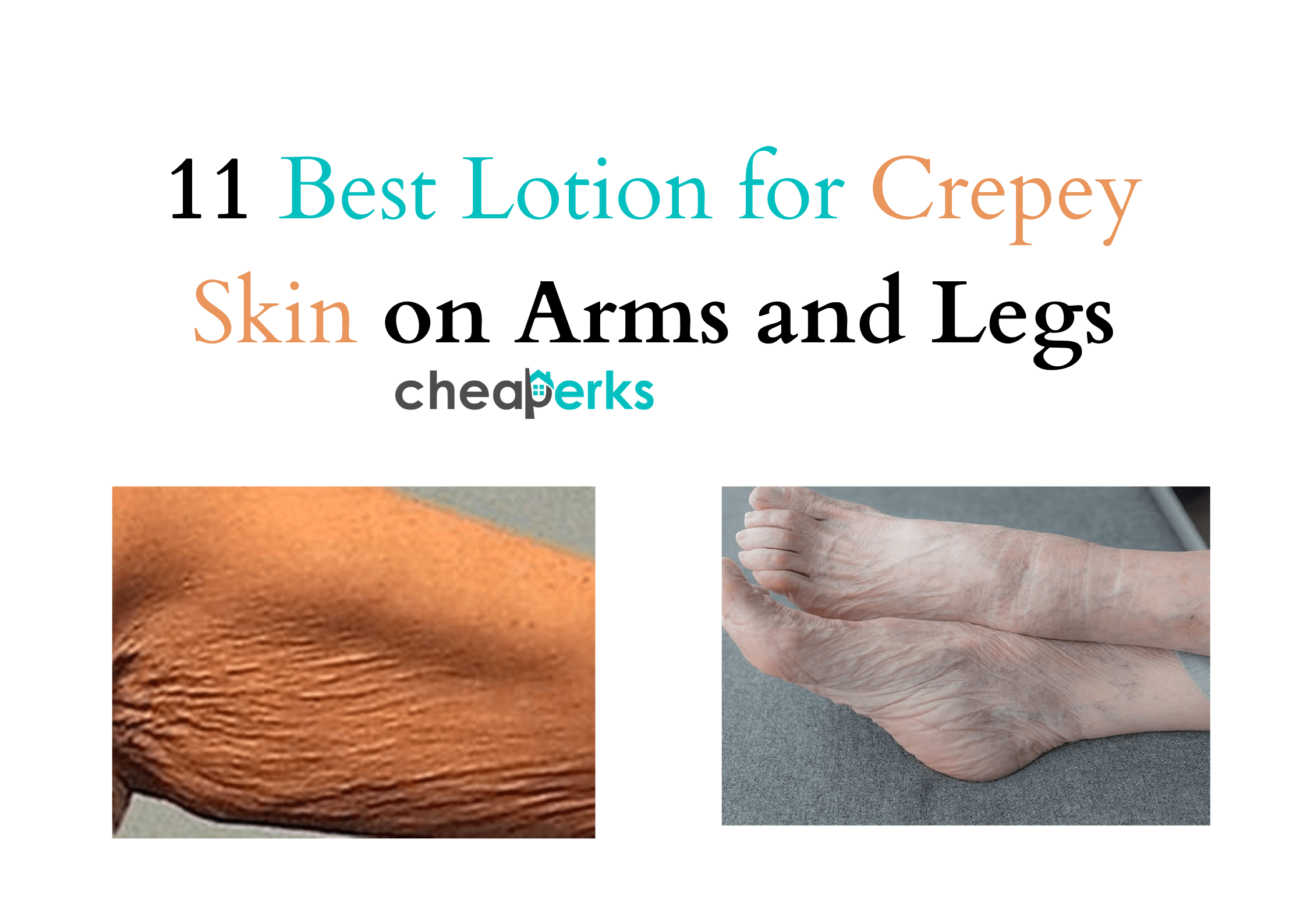 Best Lotion for Crepey Skin on Arms and Legs (1)