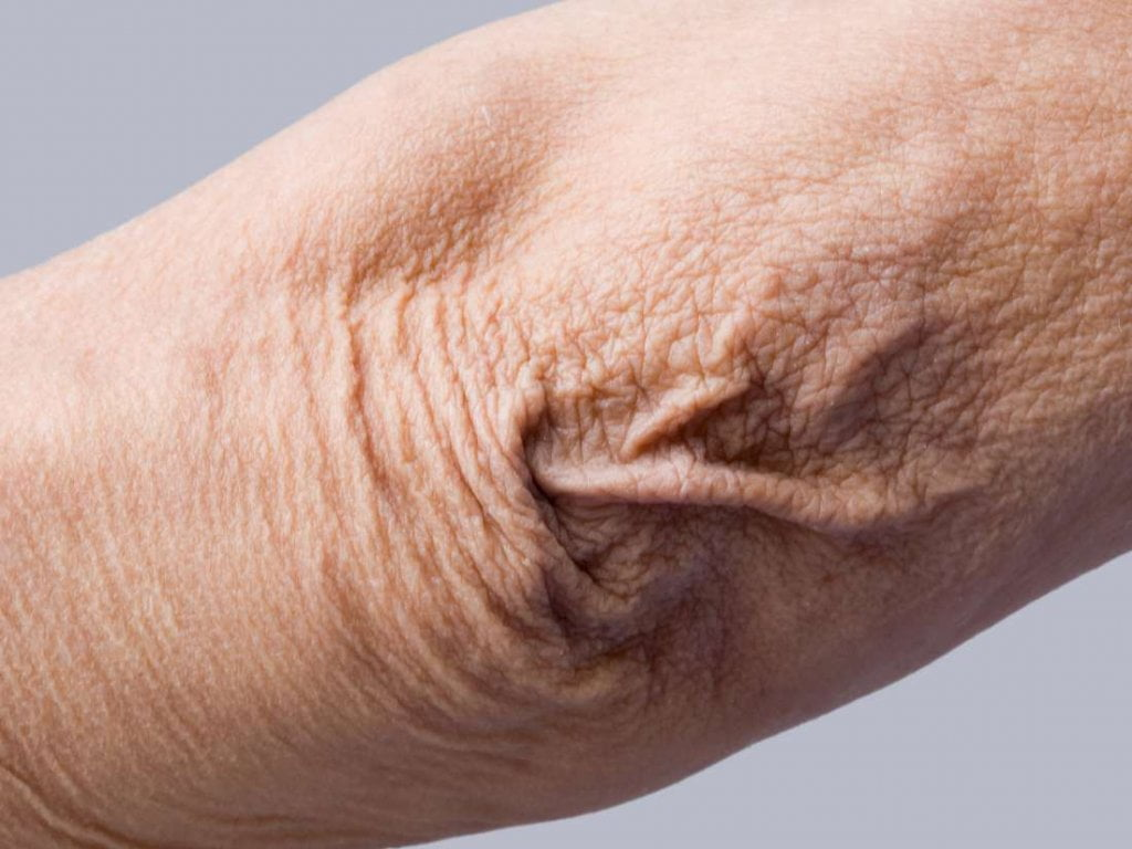 crepey skin