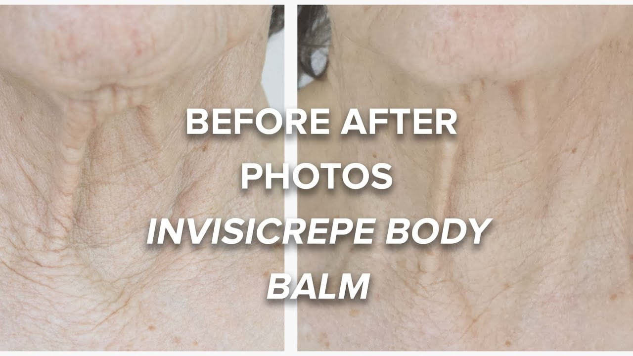 before after invisicrepe body balm